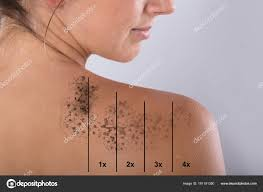 tattoo removal shoulder laser tattoo removal woman shoulder gray background stock photo