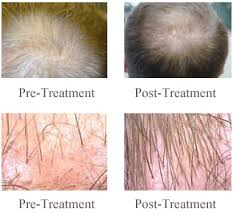 low level light therapy hair scranton laser hair therapy treatment for men and women fda laser