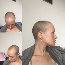 hair growth after chemo pictures breast cancer topic pictures of hair growth