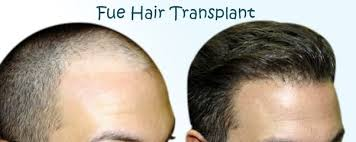 transplant hair second round draft is fue hair transplant technique better than fut technique can