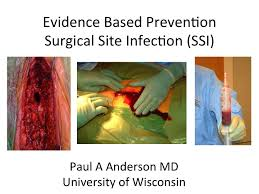 prevention of surgical site infection by paul anderson m d m s prevention of surgical site infection by paul anderson m d m s