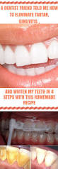 best 25 a dentist ideas on pinterest dental surgeon dentists