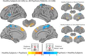 mapping thalamocortical functional connectivity in chronic and