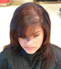 best haircuts for alopecia women s hair loss hairstyles new women hair loss kids hair cuts