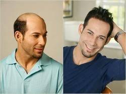 hair weaves for balding men hair weaving in delhi hair weaving for men manufacturer from new