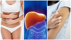 leberschwäche symptome 8 symptome die ein anzeichen für eine vergiftete leber sind