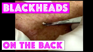 dr extracting blackheads on the back for