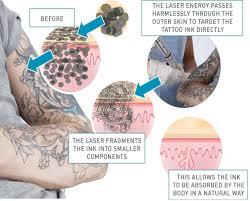 faqs sensius laser hair removal