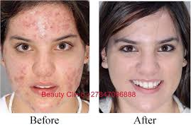 safe scar removal cream tattoo removal gel and dark spot marks