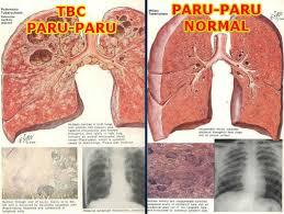 Obat Tbc obat penyakit tbc paru paru secara herbal alami hary herbal indonesia