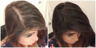 how wide is a normal hairline part how to hide your scalp line youtube