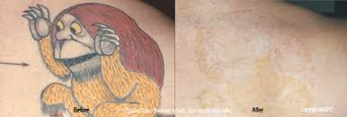 tattoo removal woodbury plastic surgery stephen t