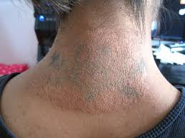 methods of tattoo removal claritas laser clinic