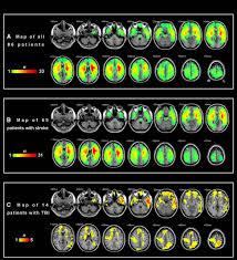 left anterior temporal lobe and bilateral anterior cingulate