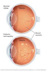 Diabetes Causing Blindness Diabetic Retinopathy Symptoms And Causes Mayo Clinic