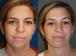 how to make a double chin look less noticable eith hair neck liposuction boston plastic surgeon leonard miller md