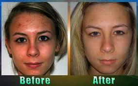 food to improve skin ahb