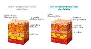 bindegewebsschwäche medikamente cellulite behandlung ursache und weitere informationen derma