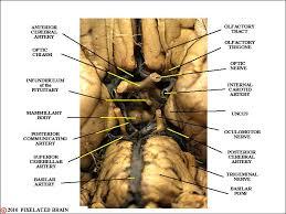 Gross Brain Anatomy Pixelated Brain Module 11 Section 4 The Optic Chiasm