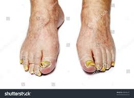 fungus infection on nails male feet stock photo 99049619