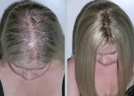 invisible hair grafting los angeles hair recovery treatment center