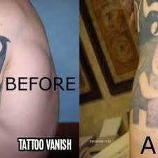 tattoo vanish near me tattoo vanish nyc closed tattoo removal 7802 13th ave dyker