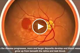 how diet may affect age related macular degeneration national