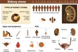Kidney stone myths   KidneyStoners org The new study suggests even first time kidney stone formers run a higher risk of developing a more severe disease  Photo by Jakupica Wikimedia Commons