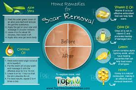 Home Remedies For Small Burns - home remedies for scar removal top 10 home remedies