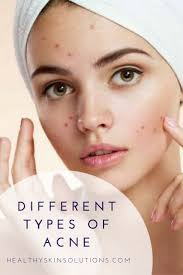 Face Mapping Acne 93 Best Skin Tips Images On Pinterest Skin Tips Beauty Secrets