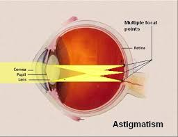 Astigmatism Night Blindness Best 25 Astigmatism Eye Ideas On Pinterest Contact Lenses