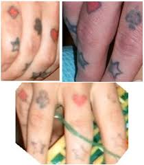 dermasal tattoo removal cream guide tattoo removal chicago cost