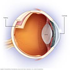 Astigmatism Night Blindness Astigmatism Symptoms And Causes Mayo Clinic