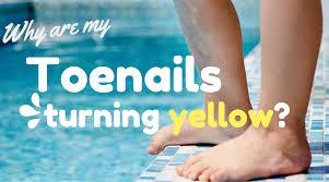 yellow nails toe nail fungus treatment why are my toenails yellow wilks advanced foot care