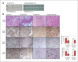 rab25 is a tumor suppressor gene with antiangiogenic and anti