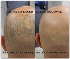 after the 4th treatment erased tattoo removal las vegas www