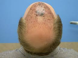 how thick is 1000 hair graft hair loss forum bobman is going in one more time