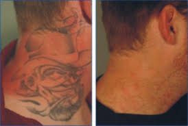 tattoo removal creams tips and tricks