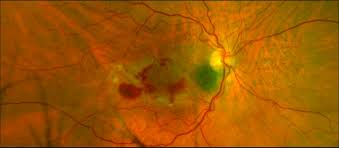 Does Macular Degeneration Always Lead To Blindness Macular Degeneration Sight Loss And Treatment Options Retina