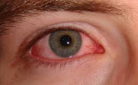 now treat weak eyesight and poor eye vision with ayurvedic