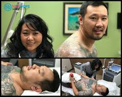 full sleeve laser tattoo removal yelp