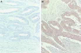 immunohistochemically detected thymidylate synthase in colorectal