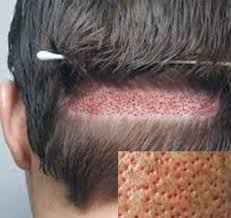 fue haircuts fue follicular unit hair transplantation and extraction method