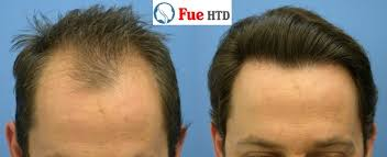 fut hong kong hair transplant what does a fue transplant really cost hair transplant in dubai