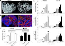 ccl2 dependent infiltrating macrophages promote angiogenesis in