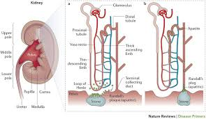 Instrument Used To Examine Interior Of Bladder Kidney Stones Nature Reviews Disease Primers