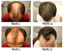 rogaine for women success stories rogaine shedding period plan shock hair loss after a hair transplant