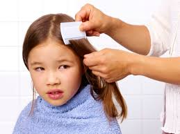 how to get rid of your toddler u0027s head lice