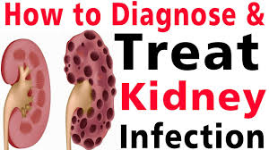 kidney infection how to diagnose kidney infection kidney infection treatment home