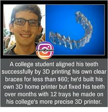College Printer Meme - factpoint a college student aligned his teeth successfully by 3d